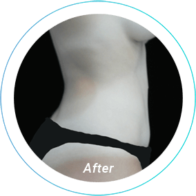 liposuction plastic surgery before and after pittsburgh