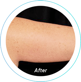 arm lift plastic surgery before and after pittsburgh