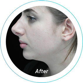 chin augmentation plastic surgery before and after pittsburgh