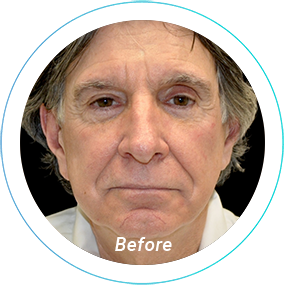 facelift plastic surgery before and after pittsburgh