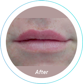 lip augmentation plastic surgery before and after pittsburgh