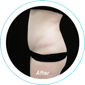 tummy tuck plastic surgery before and after pittsburgh