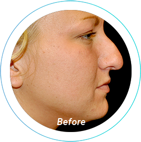 rhinoplasty plastic surgery before and after pittsburgh