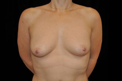 Breast Reconstructions Before & After Patient #15212