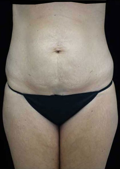 Tummy Tuck Before & After Patient #15145