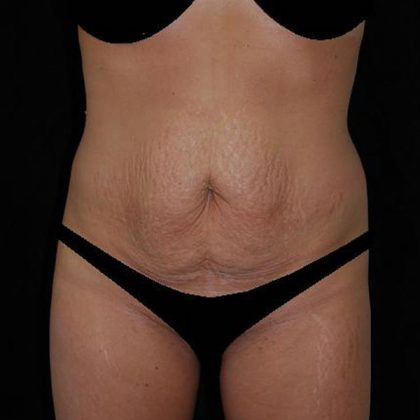 Tummy Tuck Before & After Patient #15181