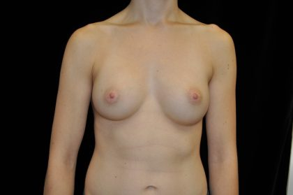 Breast Augmentation (Implants) Before & After Patient #14046