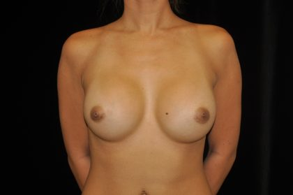 Breast Augmentation (Implants) Before & After Patient #14054