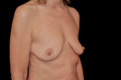 Breast Lift with Implants Before & After Patient #14531