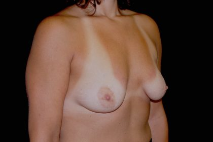 Breast Augmentation (Implants) Before & After Patient #14213