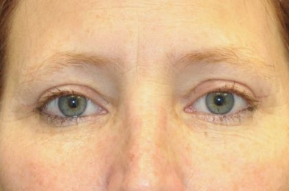 Blepharoplasty Before & After Patient #13928