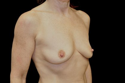 Breast Augmentation (Implants) Before & After Patient #14135