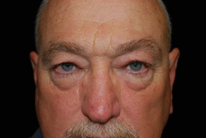 Blepharoplasty Before & After Patient #13885