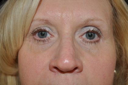 Blepharoplasty Before & After Patient #13905