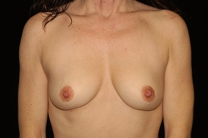 Breast Lift Before & After Patient #14445