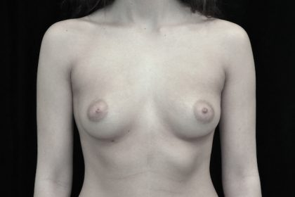 Breast Augmentation (Implants) Before & After Patient #14106