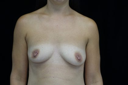 Breast Augmentation (Implants) Before & After Patient #14368