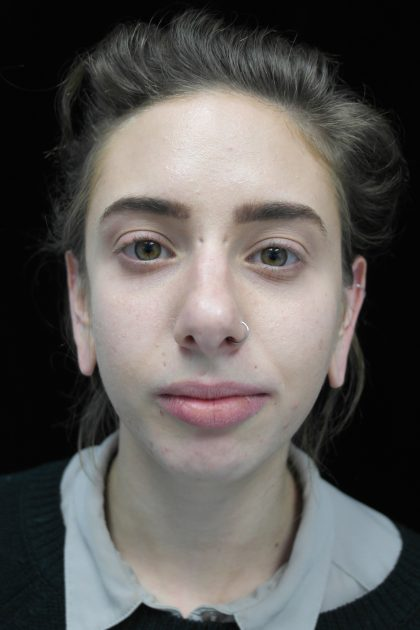Chin Implants Before & After Patient #14786