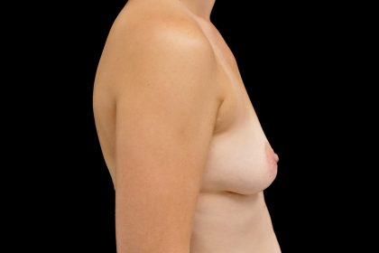 Breast Augmentation (Implants) Before & After Patient #14113