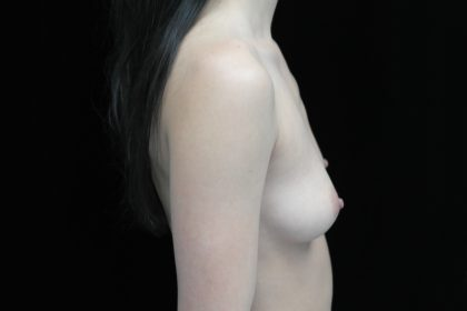 Breast Augmentation (Implants) Before & After Patient #14027