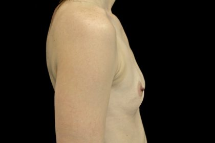 Breast Augmentation (Fat Transfer) Before & After Patient #13991