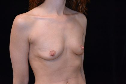 Breast Augmentation (Implants) Before & After Patient #14036