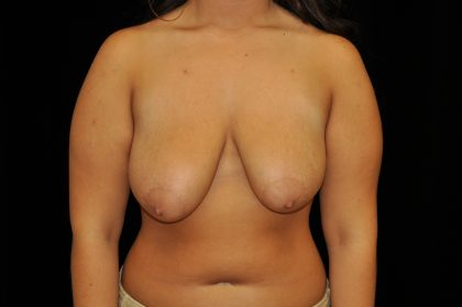 Breast Reduction Before & After Patient #14623