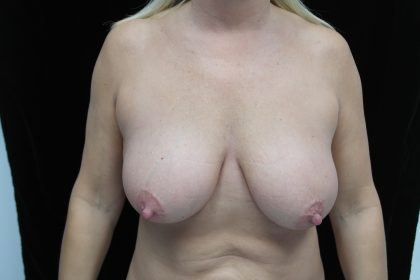 Breast Lift Before & After Patient #14455