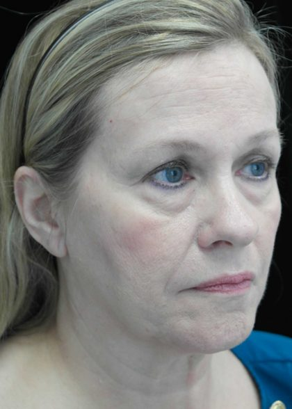 Facelift Before & After Patient #14832