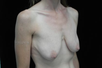 Breast Lift Before & After Patient #14396