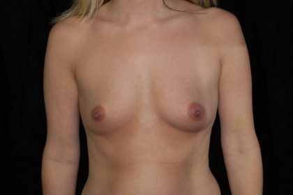 Breast Augmentation (Implants) Before & After Patient #14069