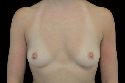 Breast Augmentation (Implants) Before & After Patient #14083