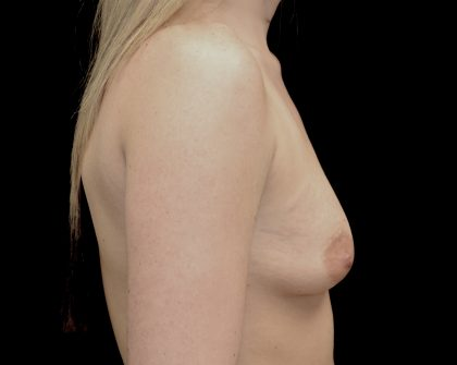 Breast Augmentation (Implants) Before & After Patient #14198