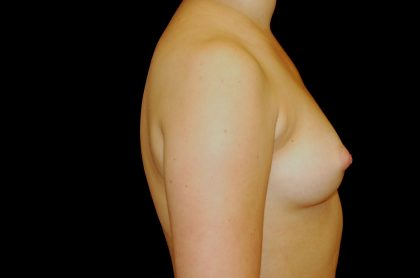 Breast Augmentation (Implants) Before & After Patient #14157