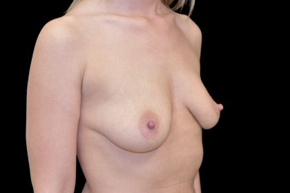 Breast Augmentation (Implants) Before & After Patient #14205