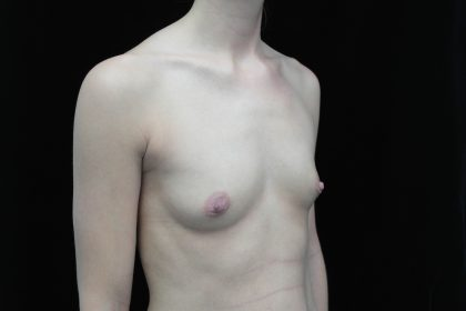 Breast Augmentation (Implants) Before & After Patient #14013
