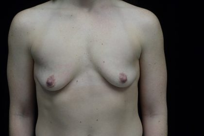 Breast Augmentation (Implants) Before & After Patient #14332
