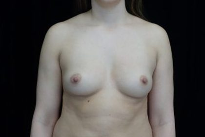 Breast Augmentation (Fat Transfer) Before & After Patient #13978