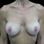 Breast Lift with Implants Before & After Patient #14507
