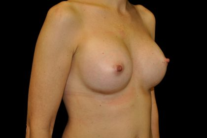Breast Augmentation (Implants) Before & After Patient #14277