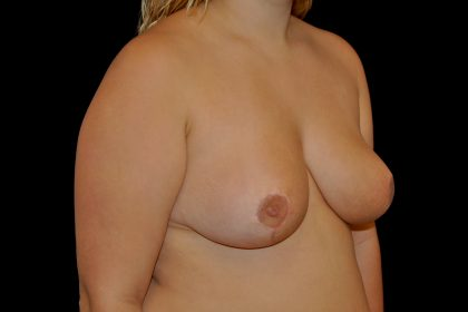 Breast Reduction Before & After Patient #14596