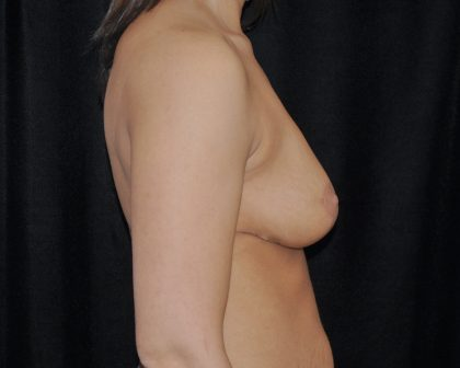 Breast Lift Before & After Patient #14430