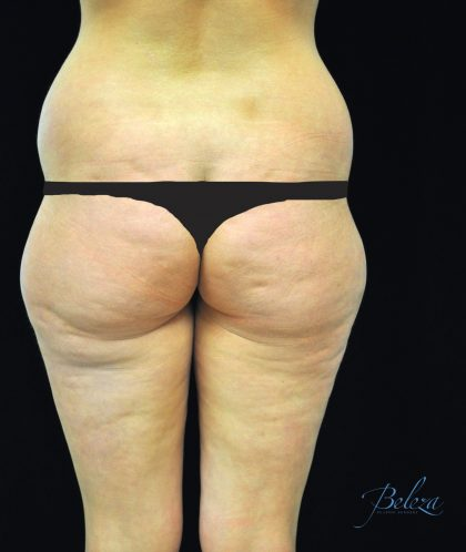 Buttock Augmentation Before & After Patient #14769