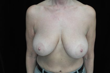 Breast Lift Before & After Patient #14467
