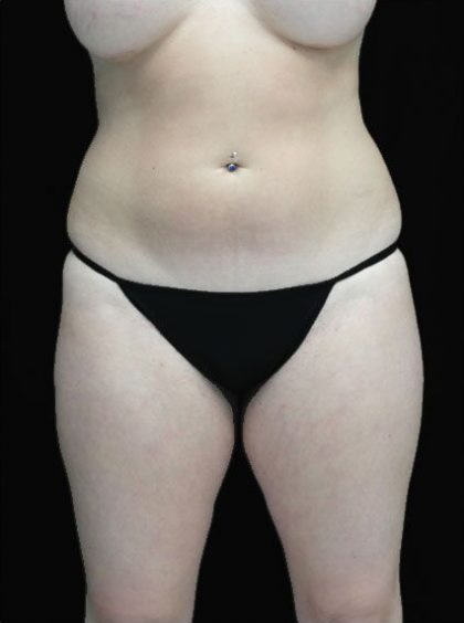 Liposuction Before & After Patient #15056