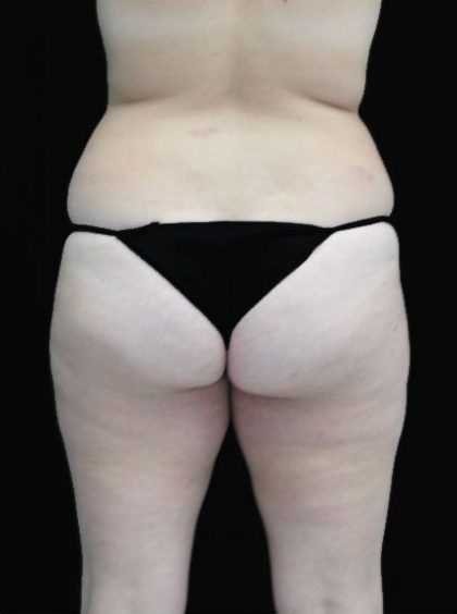 Patient #15056 Liposuction Before and After Photos