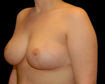 Breast Reduction Before & After Patient #14586