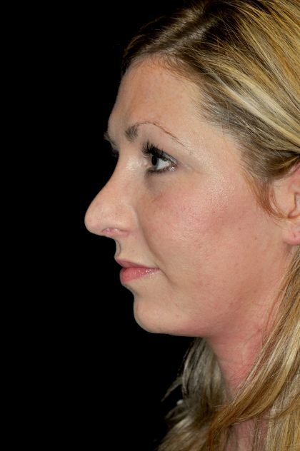 Chin Implants Before & After Patient #14798