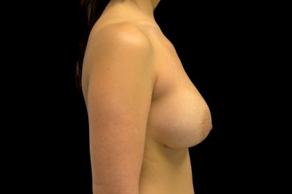 Breast Augmentation (Implants) Before & After Patient #14169