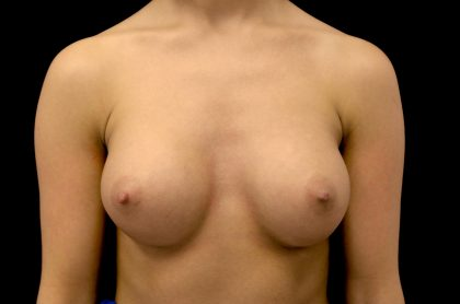 Breast Augmentation (Implants) Before & After Patient #14162